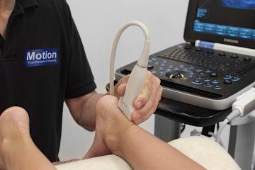 Fysiotherapie bij spier- en peesklachten